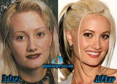 Holly Madison Plastic Surgery Before and After Photos - Plastic Surgery Facts Plastic Surgery Facts, Plastic Surgery Gone Wrong, Actress Without Makeup, Rhinoplasty Surgery, Holly Madison, Celebrities Before And After, Celebrity Plastic Surgery, Physical Change, Cosmetic Procedures