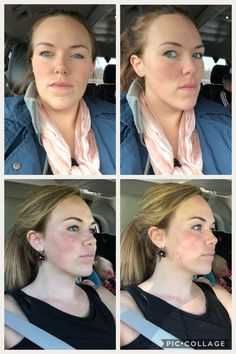 and after double jaw surgery to correct class III malocclusion.Before and after double jaw surgery to correct class III malocclusion. Jaw Reduction Surgery, Double Jaw Surgery, Orthognathic Surgery, Chin Implant, Facial Bones, Dentist Appointment, Operation, Rhinoplasty, Cosmetic Dentistry
