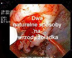 hotto.pl-Wrzody- żołądka-Leczenie-naturalne-domowym-sposobem-przepisy Baked Potato, Potatoes, Beef, Baking, Health, Ethnic Recipes, Food, Meat, Health Care