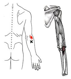 Anconeus trigger point diagram, pain patterns and related medical symptoms. The myofascial pain pattern has pain locations that are displayed in red and associated trigger points shown as Xs. Shoulder Anatomy, Medical Symptoms, Dry Needling, Referred Pain, Body Diagram, Trigger Point Therapy, Reflexology Massage, Massage Benefits, Massage Techniques
