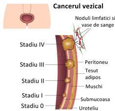 Cancerul de vezica urinara - Sante Tour - Turism Medical (1)