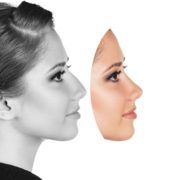 Thinking of getting a #NoseJob? Here's What You Need to Know About #Rhinoplasty. -via Cosmeticles