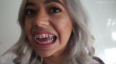 #braces #girlswithbraces #elastics