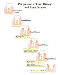 Dental implant companies false teeth,when to have a root canal dental hygiene and health,how to get good oral hygiene clean plaque between teeth. Dental Assistant Study, Dental Hygiene Student, Dental Humor, Dental Hygienist, Dental Implants, Dental Surgery, Dental World, Dental Life, Smile Dental