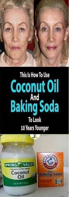Coconut Oil and Baking Soda Face Mask to Look 10 Years Younger Baking With Coconut Oil, Coconut Oil For Skin, Extra Virgin Coconut Oil, Coconut Oil Facial, Coconut Oil Uses, Health World, Benefits Of Coconut Oil, Tips Belleza, Skin Treatments
