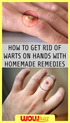 How to Get Rid of Warts on Hands with Homemade Remedies - WOWBuzz! Foot Warts, Warts On Hands, Warts On Face, Home Remedies For Warts, Natural Cough Remedies, Natural Cures, Natural Healing, Sleep Remedies, Homeopathic Remedies