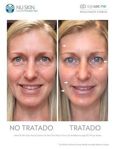 Natural Anti Aging Skin Care Tips – Away With Acne Nu Skin, Organic Skin Care, Natural Skin Care, Galvanic Spa, Spa Packages, Tips Belleza, Anti Aging Skin Care, Clear Skin, Skin Care Tips