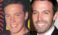 Ben Affleck before and after  www.prosmiles.co.uk