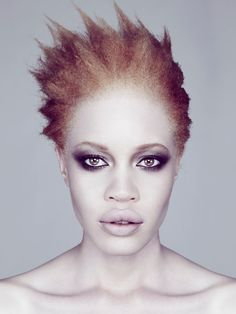 hair: Diandra Forrest is a famous Afro-American albino model