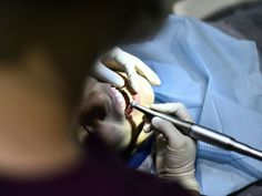 #Les dentistes alertent sur les gencives qui saignent - Sciences et Avenir: Sciences et Avenir Les dentistes alertent sur les gencives qui…