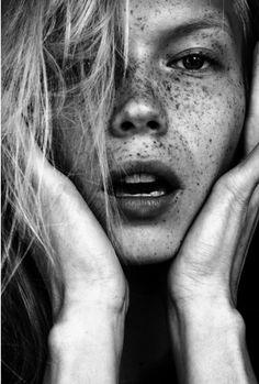 Freckled.