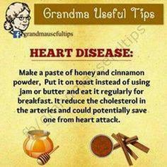 Arthritis Remedies Hands Natural Cures - 20 Amazing Grandma Useful Tips .Keep Sharing Source: Grandma Useful Tips - GreenYatra - Arthritis Remedies Hands Natural Cures Natural Health Remedies, Natural Cures, Natural Healing, Herbal Remedies, Natural Treatments, Natural Oil, Natural Foods, Natural Products, Natural Beauty