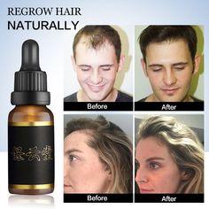 Anti Hair Loss Treatment Hair Growth Essence Oil for Fast Hair Growth Hair Care Product Nourishing Hair Root Solution Hair Tonic