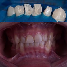 Class III composite... Still far from perfection ...pt will go crowns and veneers after completing orthodontic Tx. . . [ #zoom ] [ #bleaching ] [#sharjah ] [ #ajman ] [ #fujairah ] [ #dentist ] [ #dentistry ] [ #DentalTips ] [ #dentalclinic ] [ #dubai ] [ #majesty_dental_center ] [ #Endodontic ] [ #rootcanal ] [ #odontologia ] [ #protapernext ] [ #dentalphotography ][ #الفجيرة ] [ #العين ] [ #الإمارات ] [ #كلباء ] [ #دبي ] [ #دبا_الفجيرة ] [ #دبا_الحصن ] [ #خورفكان ] [ #أسنان ] [ #أبوظبي ] […