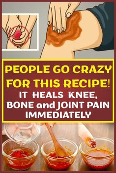 The knee joint is the largest in the human body. It handles a tremendous amount of stress as it allows lower body mobility while supporting the upper body. Fortunately for our knees, there are natural remedies to reduce inflammation and ease the pain. Substance P, Knee Bones, Knee Pain Relief, Natural Pain Relief, Bone And Joint, Natural Medicine, Going Crazy, Natural Remedies, Herbal Remedies