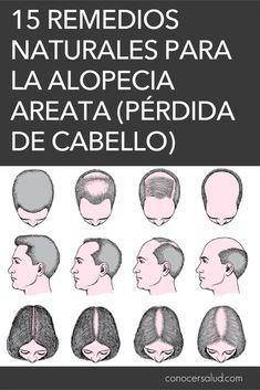 15 Remedios naturales para la alopecia Areata (pérdida de cabello) #salud