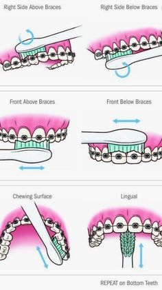 How to brush with braces. Soft Food For Braces, Braces Food, Braces Tips, Dental Braces, Dental Care, Dental Logo, Braces Smile, Teeth Braces, Cute Braces Colors