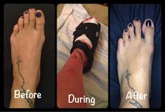 Bunion Surgery - What to expect & tips I found useful! #foot #surgery