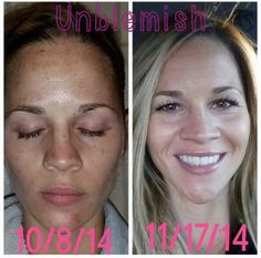 "This just shared by Heather Nicholson!!! it!  ""Following up with my previous UNBLEMISH post. Foundation free for the first time in FOREVERRRR! Just bronzer powder, mascara & lip gloss!""  http://evpo.st/1oORTPN -->                   Shop -->Unblemish"