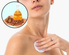 How to Remove Annoying Papillomas and Warts Once For All How To Get Rid Of Acne, How To Remove, Fig Juice, William Shakespeare Sonnets, Garlic Pills, Pure Castor Oil, Natural Exfoliant, Warts, Salicylic Acid