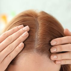 The One Supplement You Should Have Every Morning To Prevent Hair Loss Over According To An Expert - Care - Skin care , beauty ideas and skin care tips How To Grow Natural Hair, Natural Hair Styles, Dry Lips Remedy, Sephora, Eyeshadow Tips, Regrow Hair, Hair Serum, Prevent Hair Loss, Cool Haircuts