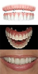 http://www.dentalimplantslondonuk.co.uk/same-day-dental-implants - implant dentist london Have a quick look at our site. https://www.facebook.com/bestfiver/posts/1425189684360669