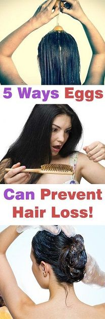 Hair Loss Remedies 5 Ways Eggs Can Prevent Hair Loss! Stop Hair Loss, Prevent Hair Loss, Natural Hair Care, Natural Hair Styles, Natural Cures, Afro Hair Care, Skin Care Routine 30s, Facon, Afro Hairstyles
