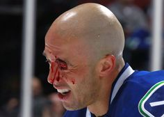 10 Of The Most Gruesome Sports Injuries