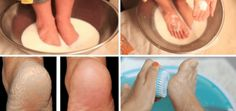 Do not get a pedicure, these 2 ingredients for the kitchen will make your feet look beautiful and healthy Dark Makeup Looks, Blue Makeup, Face Home, Stopping Breastfeeding, New Skin, 2 Ingredients, Feet Care, How To Lose Weight Fast, Home Remedies
