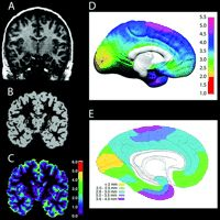 Longitudinal Mapping of Cortical Thickness and Brain Growth in Normal Children