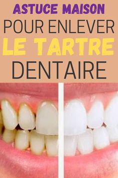 Tooth Caries, What Causes Tooth Decay, Abscess Tooth, Nail Care Routine, Tongue Health, How To Prevent Cavities, Health And Beauty Tips, Healthy Beauty, Dental Care