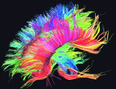 neural pathways - Google Search