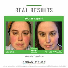 Winter skin can be painful, damaging and embarrassing.  Rodan and Fields Soothe can help ease the redness, dryness and cracking.  Protect your skin this winter with Soothe.  Try it risk free for 60 days...if you don't love it, send it back!  Email me to get hooked up with 10% off and free shipping straight to your door.  ReaganOglesby@gmail.com