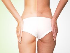At Hans Place Practice we are now providing an effective treatment in the reduction of Cellulite. To book a consultation with Dr Comins please call us on 0207 584 1642.