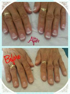French Overlay Bio Sculpture