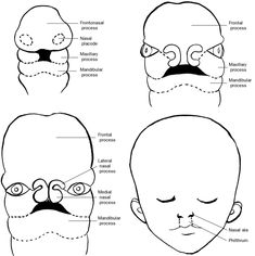 Cleft palate: Clefts of the primary palate occur when the