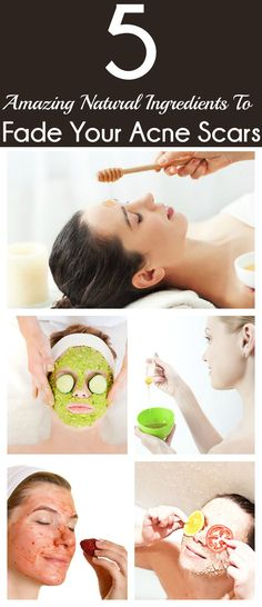 5 Amazing Natural Ingredients To Fade Your Acne Scars