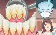 Mouthwash removing plaque teeth just 2 minutes Oral Health, Health Tips, Health And Wellness, Health Fitness, Health Care, Plaque Removal, Atkins Diet, Mouthwash, Food To Make