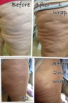 BEFORE & AFTER Questions mommawraps@gmail.com or www.mommawraps.com #mommawraps #beforeafter #nofilter #health #weightloss #skinny #healthy #lookgood #results #nongmo #sahm #momlife #workfromhome #debtfree #cellulite
