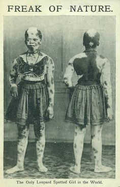 10 Most Curious Sideshow Performers of The Past - ODDEE