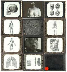 Own a Piece of Morbid Medical History Branches Of Biology, The Lovely Bones, Vintage Medical, Medical History, Beautiful Artwork, Picture Show, Gallery Wall, Illustration, Exhibit