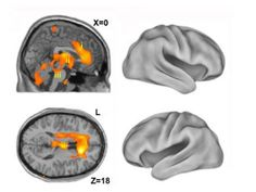 Scientists say Primitive Brain structures activate first as People awaken from Anesthesia