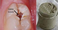 Αυτή η σπιτική οδοντόκρεμα αντιστρέφει την ουλίτιδα και λευκαίνει τα δόντια