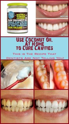 USE COCONUT OIL AT HOME TO CURE CAVITIES. THIS IS THE RECIPE THAT DENTISTS ARE NOT TELLING YOU!