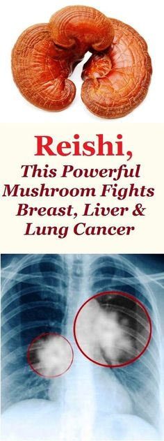 Reishi, This Powerful Mushroom Fights Breast, Liver & Lung Cancer