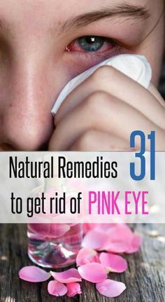 31 Home Remedies to Get Rid of Pink Eyes
