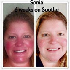 Rosacea? Sensitive, red or irritated skin? Or do you just want an amazing everyday skin regimen? I can't say enough good things about Rodan+Fields. Give it a try. You have nothing to lose with our 60 day money back guarantee.