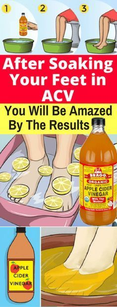 After Soaking Your Feet in Apple Cider Vinegar,You Will Be Amazed By The Results