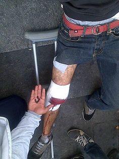 En imágenes: 4:45pm Compañero herido de perdigones por la PNB en #Altamira. #1M. #Caracas