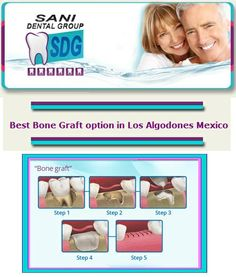 In a bone grafting procedure, we gently open the gums and place grafting materials onto the areas where the jaw bone has receeded.   #Dental_Bone_Graft_in_Los_Algodones_Mexico